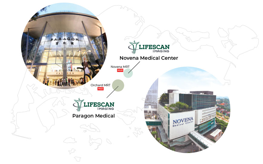 Lifescan Imaging: Paragon and Novena